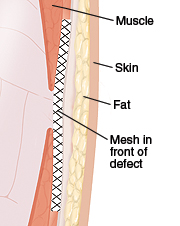 Cross section of abdominal wall showing mesh repair in front of hernia defect.
